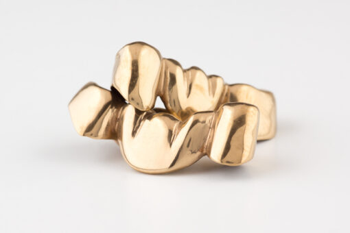 Can You Really Sell Dental Gold? Yes, You Can! Get the Facts Today